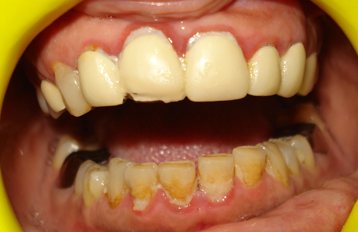 Family Dentist Ahmedabad Bad Breadth Treatment Teeth