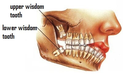 wisdom tooth removal cost in ahmedabad, oral surgeon in ...